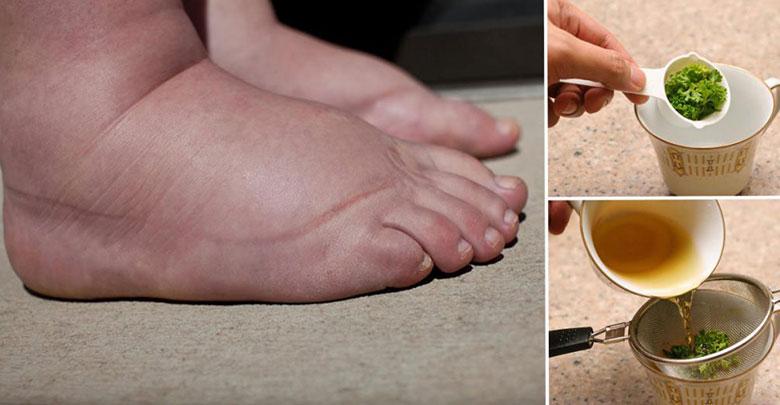 pernas e pés inchados