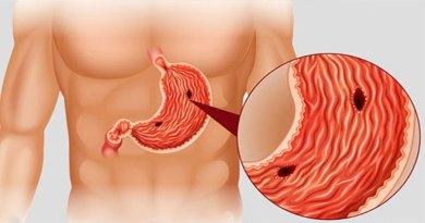 câncer de estômago