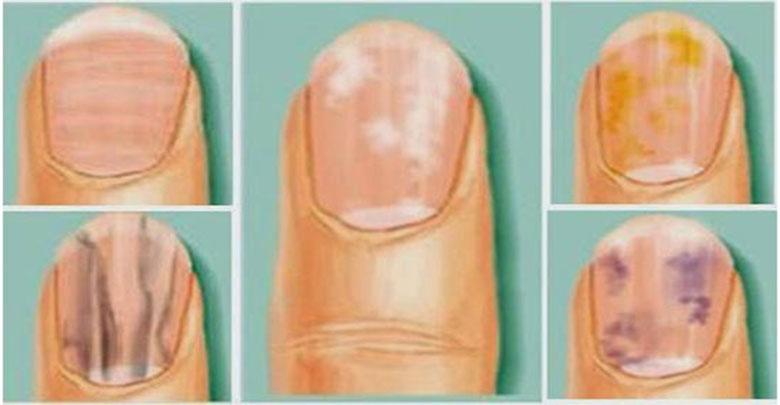 Problemas nas unhas podem indicar doenças