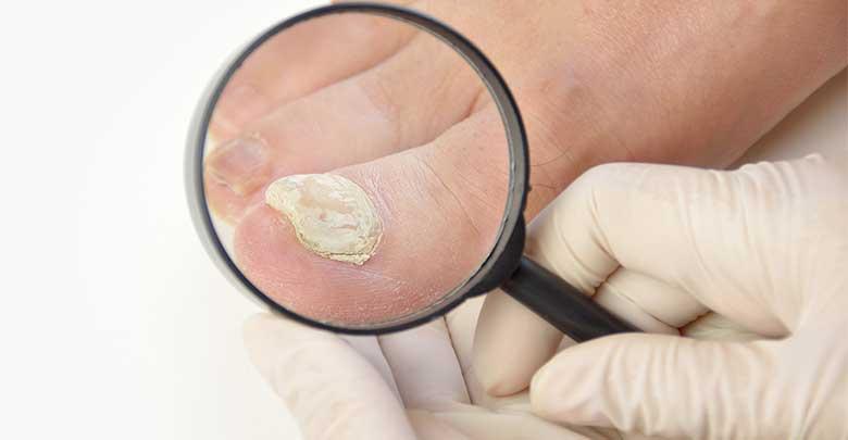 fungos nas unhas