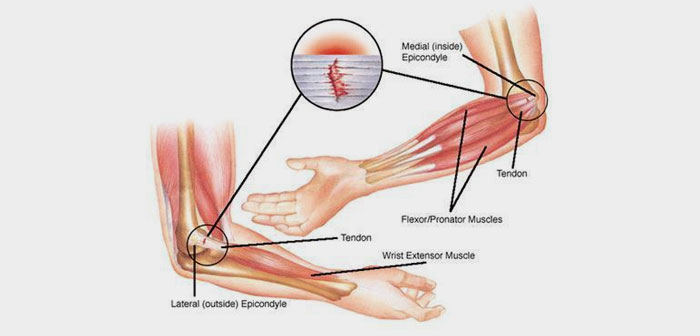 Generally, epicondylitis is a trauma disorder that can appear in the various joints of the body with exertion low intensity but with many repetitions.