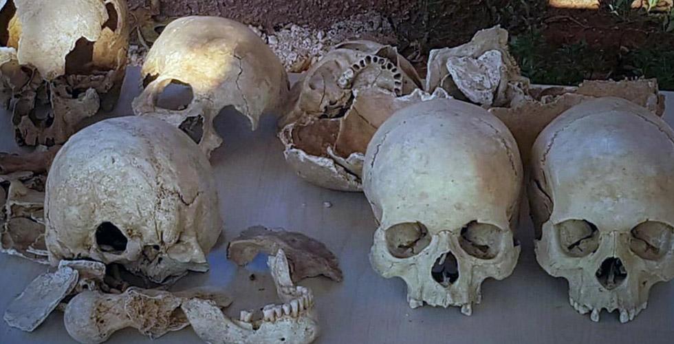 Gaziantepli 91 iskelet Münster'de inceleniyor
