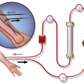 Difference Between Osmosis and Dialysis