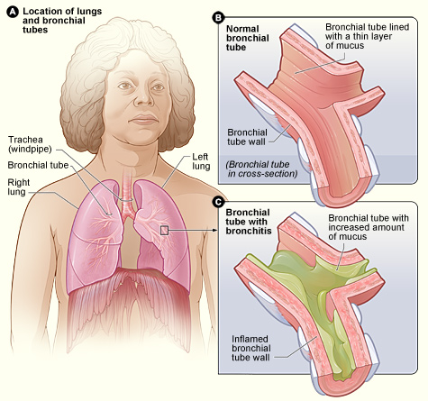 Bronchitis vs whooping cough