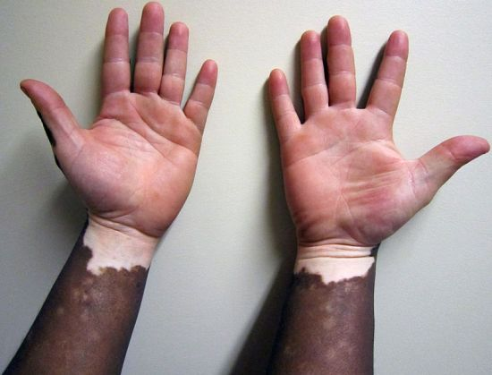 difference between albinism and vitiligo