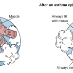 Difference Between Stridor and Wheezing
