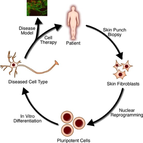 Key Difference - Gene Therapy vs Stem Cell Therapy