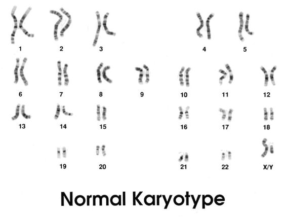 Difference Between Normal and Abnormal Karyotype