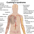 Difference Between Addison Disease and Cushing Syndrome