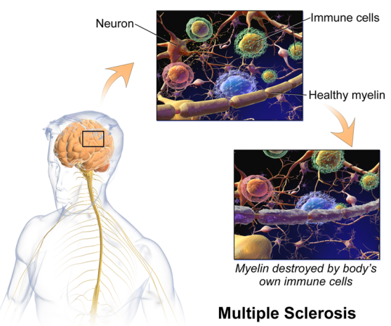Difference Between Multiple Sclerosis and Systemic Sclerosis