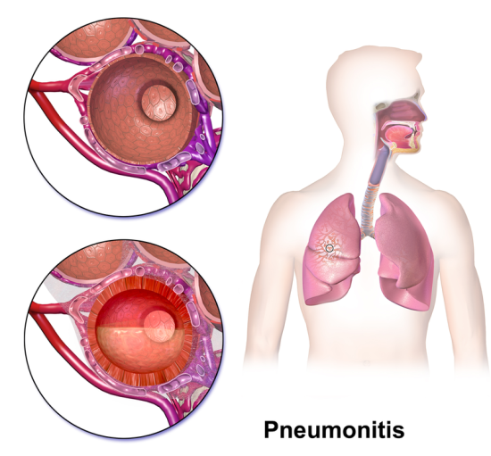 Main Difference - Pneumonia vs Pneumonitis
