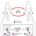 Difference Between Trichomoniasis and BV