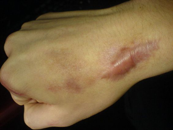 Difference Between Keloid and Hypertrophic Scar