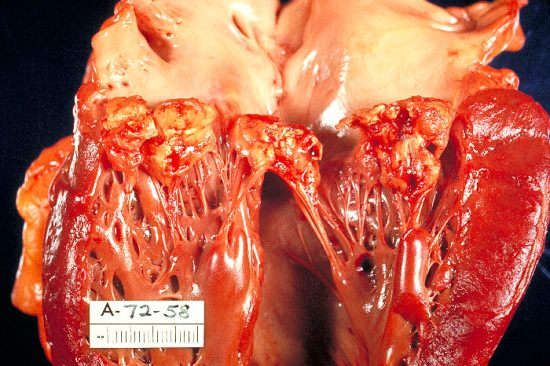 Key Difference Between Acute and Subacute Endocarditis