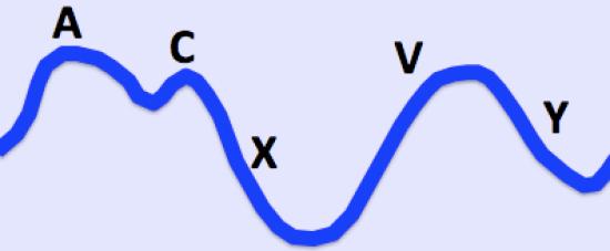 Key Difference Between Carotid Artery Pulsation and Jugular Vein Pulsation