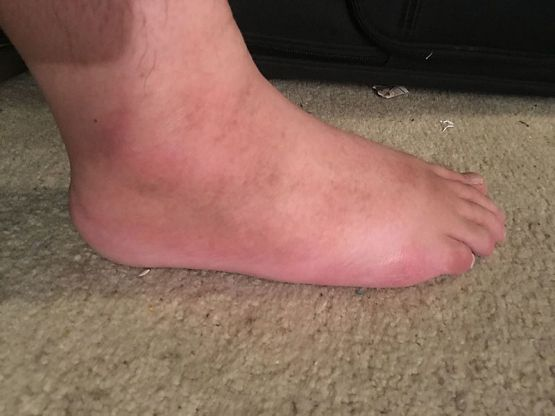 Key Difference Between Erysipelas and Cellulitis