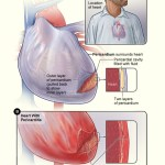 Difference Between Myocarditis and Pericarditis