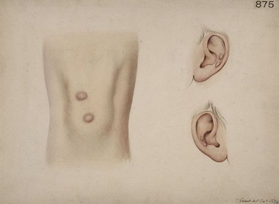 Difference Between Nodule and Cyst