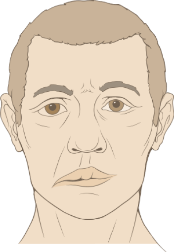 Difference Between Bell's Palsy and Facial Palsy