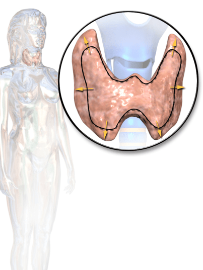 Key Difference Between Graves Disease and Hyperthyroidism