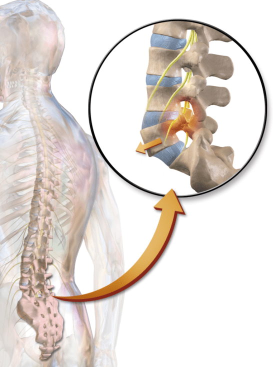 Key Difference Between Spondylosis and Spondylolisthesis