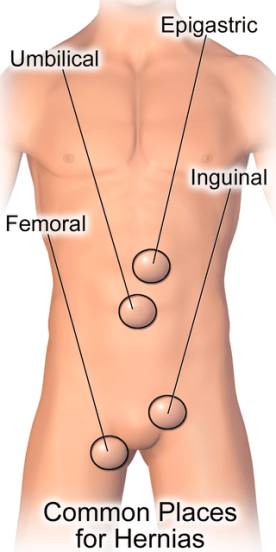 How to Tell the Difference Between Groin Strain and Hernia_Fig 2