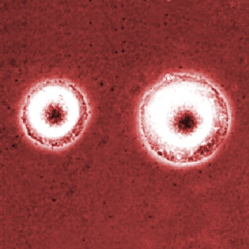 Difference Between Mycoplasma and Ureaplasma