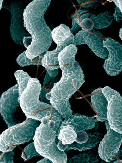 Difference Between Campylobacter and Helicobacter