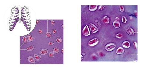 Key Difference - Elastic Cartilage vs Hyaline Cartilage