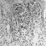 Difference Between Acanthosis and Acantholysis