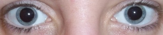Cycloplegia caused by Cyclopentolate
