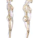 What is the Difference Between Lordosis Kyphosis and Scoliosis