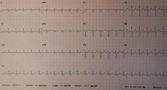 Junctional vs Idioventricular Rhythm in Tabular Form