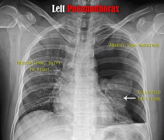 Hemothorax and Pneumothorax - Side by Side Comparison