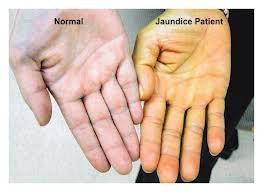 difference between jaundice and yellow fever jaundice vs yellow fever