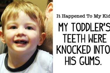 teeth knocked into gums