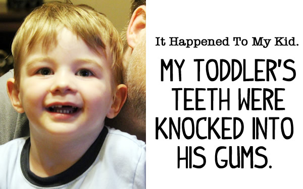 teeth knocked into gums