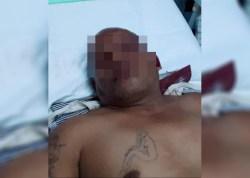 Mabuk Miras Naik Sepmor, Pria di Kupang Celaka dan Sekarat, Meragang Nyawa di RS