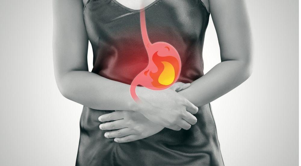 rimedi per il bruciore di stomaco