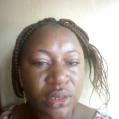 Woman Facing Physical and Emotional Abuse from her Husband Cries Out (Photos)