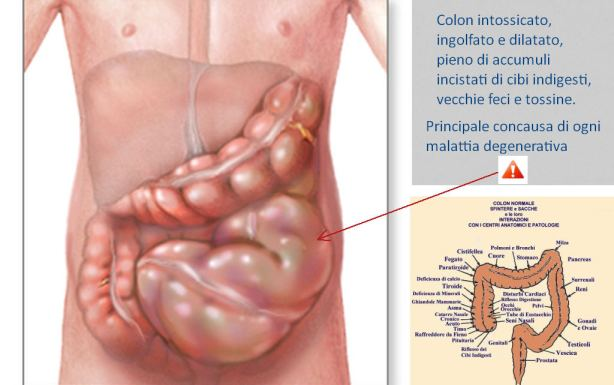 colla intestino1