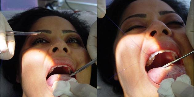 Le patch cousu sur la langue, nouvelle arme contre le surpoids