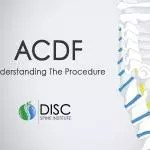 ACDF Surgery: Six Things You Should Know