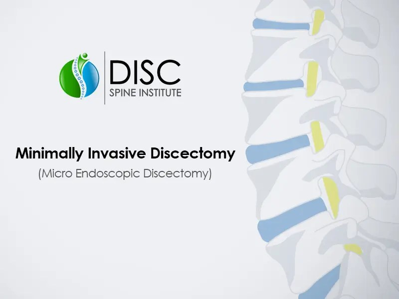 Minimally Invasive Discectomy