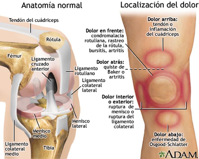 Dolor de rodilla - Periódico Distrito Villaverde