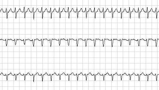 Valsalva Maneuver for SVT