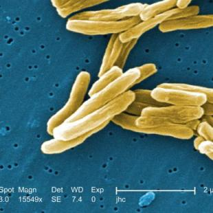Indian American Stanford scientist's findings could diagnose active tuberculosis