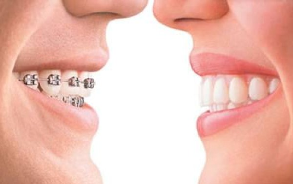 Dental braces requirement risks and preparation diy health dental braces requirement solutioingenieria Images