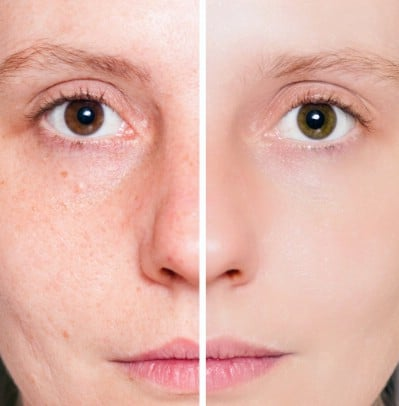 Get rid of acne and boils - 51 Extraordinary Everyday Uses for Hydrogen Peroxide