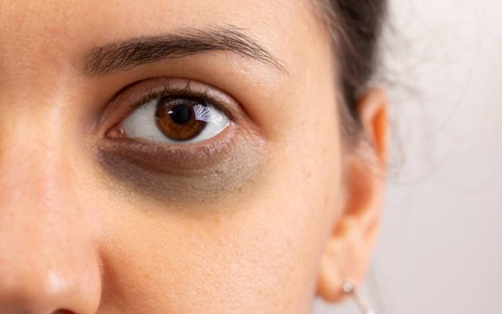 How to Lighten Dark Circles Around Eyes?